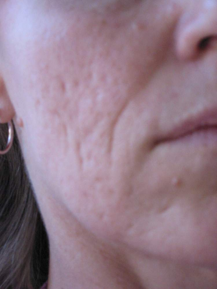 Scar treatment before & after