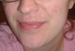 Post- Tane 2 months Close up