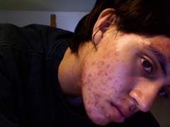 Acne Sucks Redness and Marks it looks at its worst