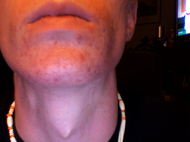 Only 2 or 3 days into the regimen