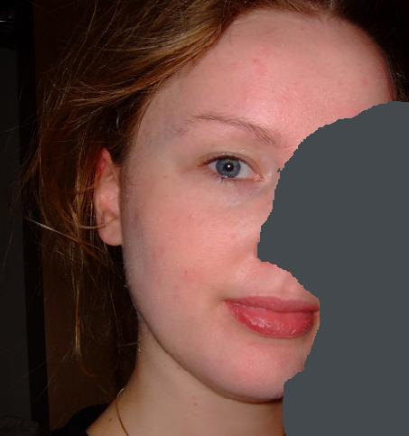 Month 4 on accutane - WOW!