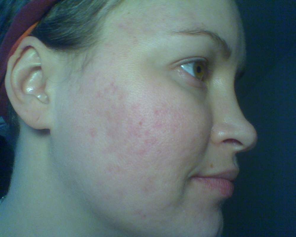 9.21.2008, after 4 months of Tane.  Totally clear, red marks