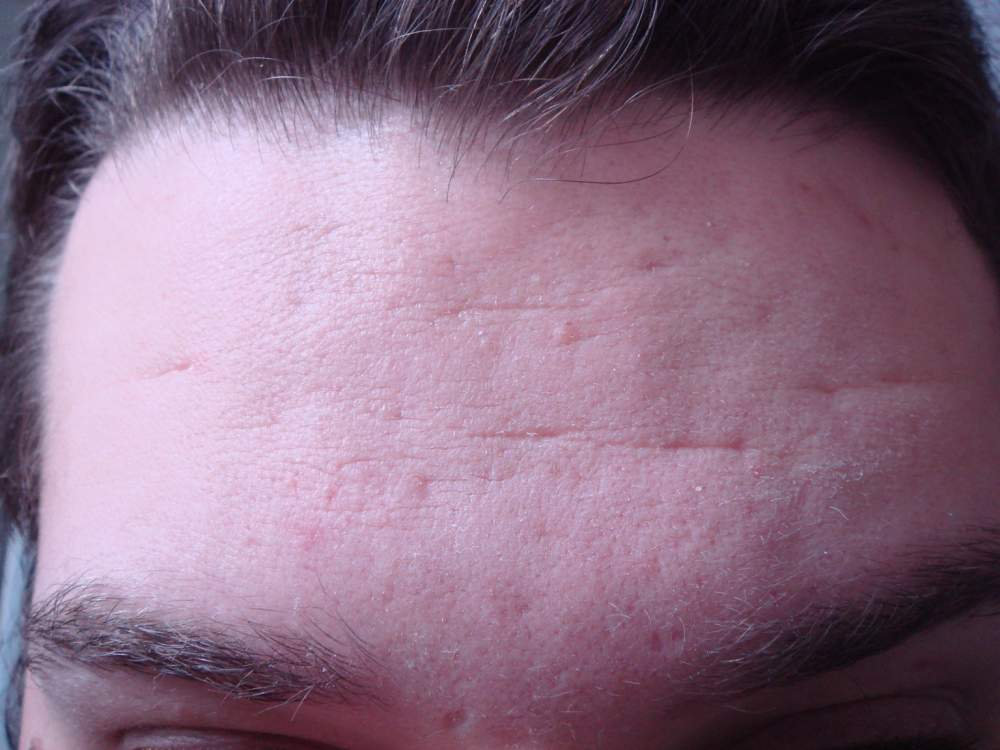 Forehead ice pick scarring and well, wrinkles too...