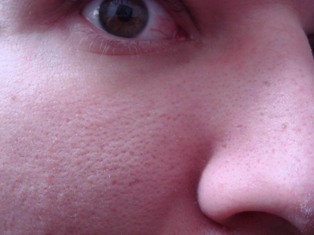 right side of nose, enlarged scarred pores....