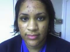 My acne.org regimen progess