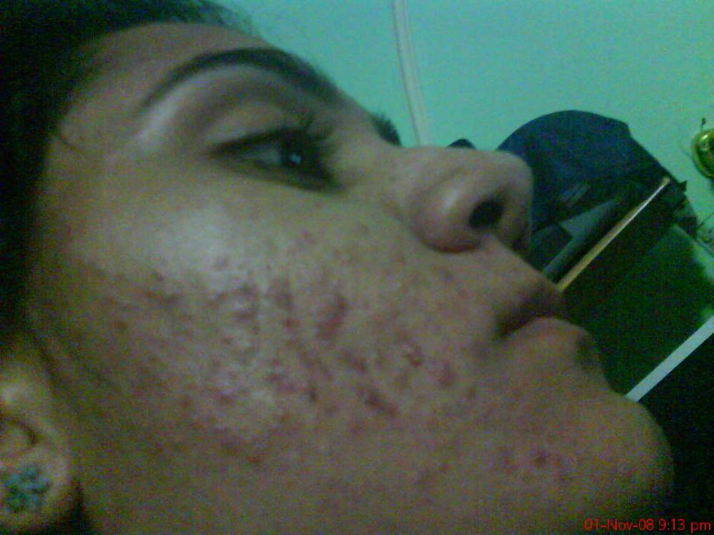 my first pic on acne.org