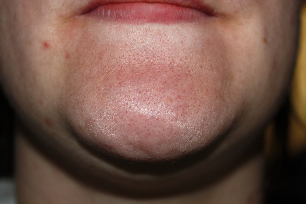 Chin yuck close up