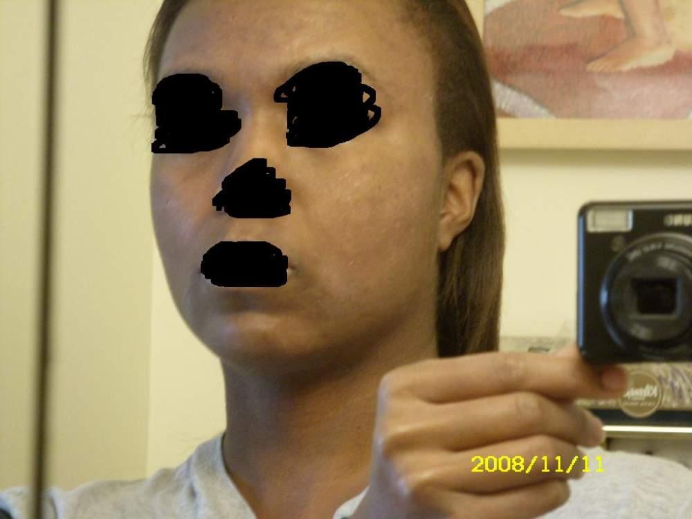 acne11233.JPG