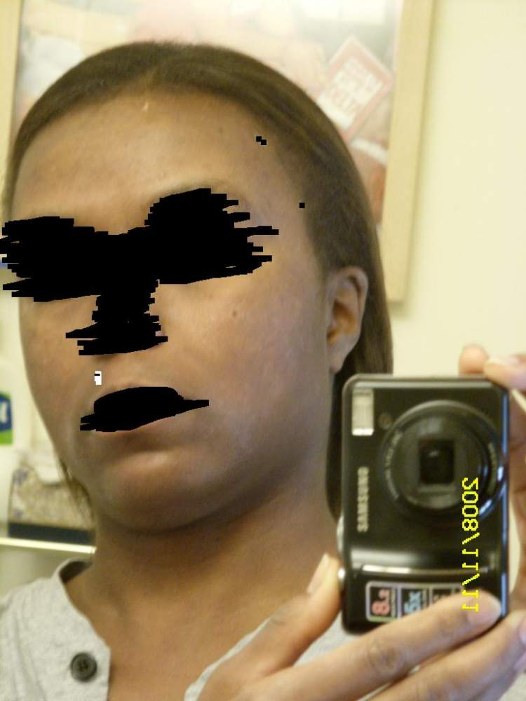acne11232.JPG