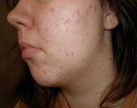 Acne left cheek bad :(