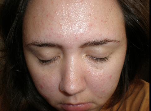 Acne full face :(