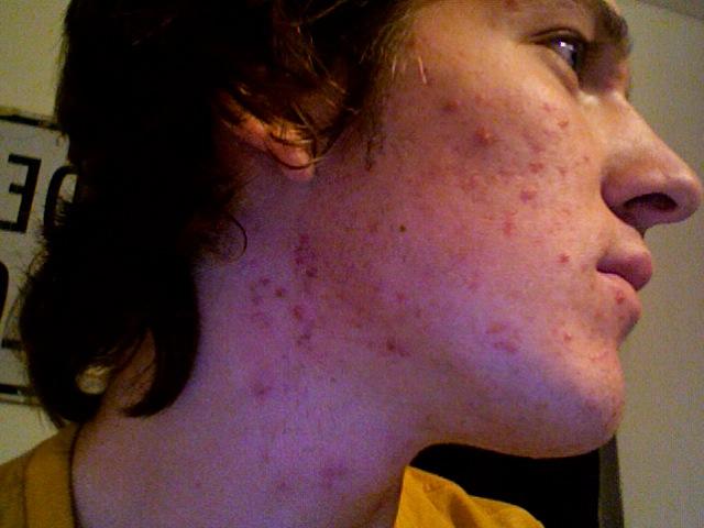 My Skin and Accutane