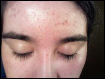 Forehead 12.21.08.jpg