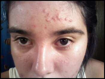 Forehead 10.15.08.jpg