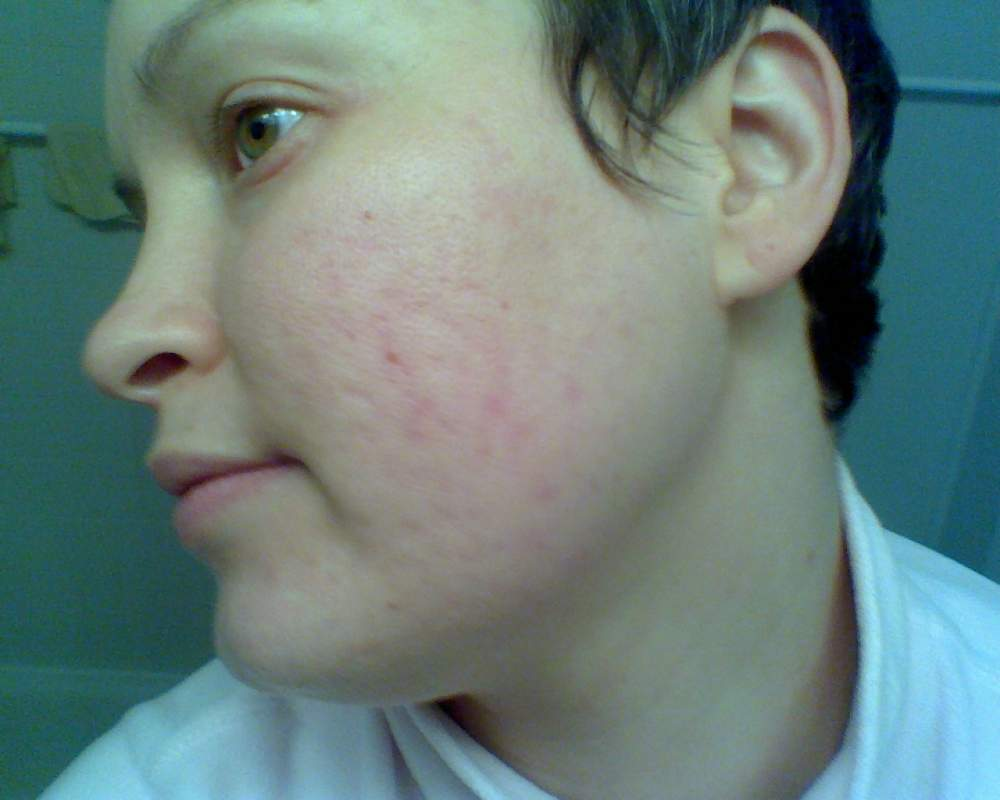 December 18, 2008.  One Month Post-Tane.  Red marks are fadi