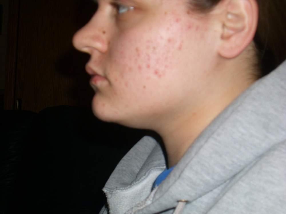 acne 023.jpg