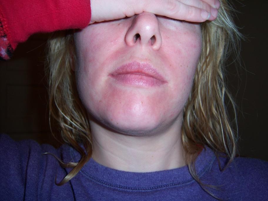 Mild Adult Acne - Retin A