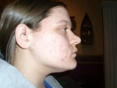 acne 006.jpg