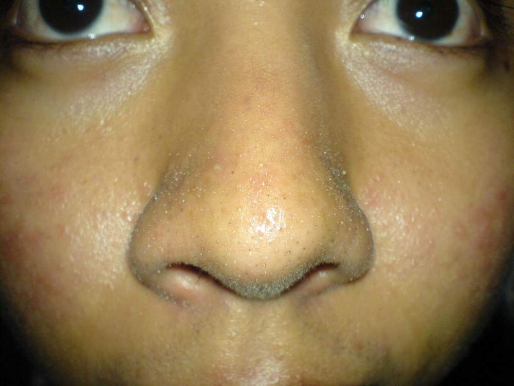 Day 4 All Natural Regimen(Cheeks and Nose)