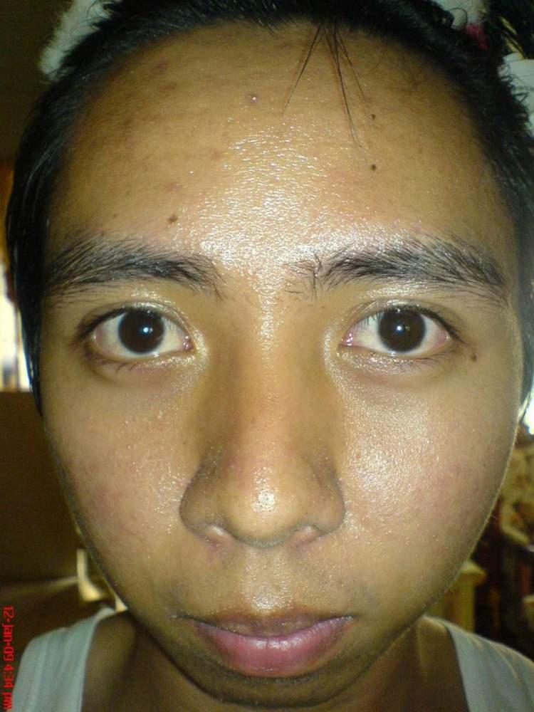 Day 3 All Natural Regimen(Face)
