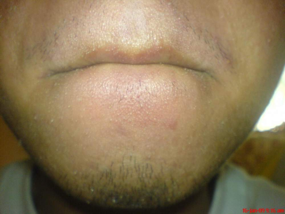 Day 7 All Natural Regimen(Mouth Area)