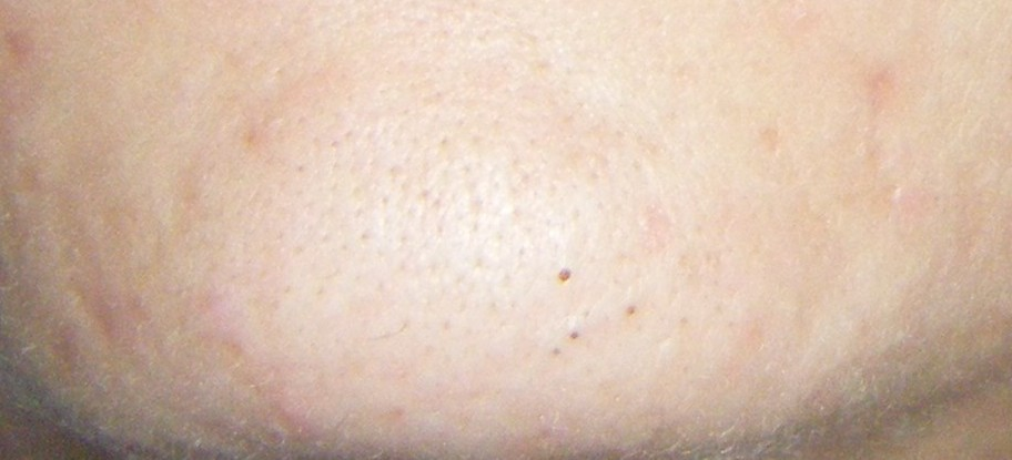 chin 1-15.jpg