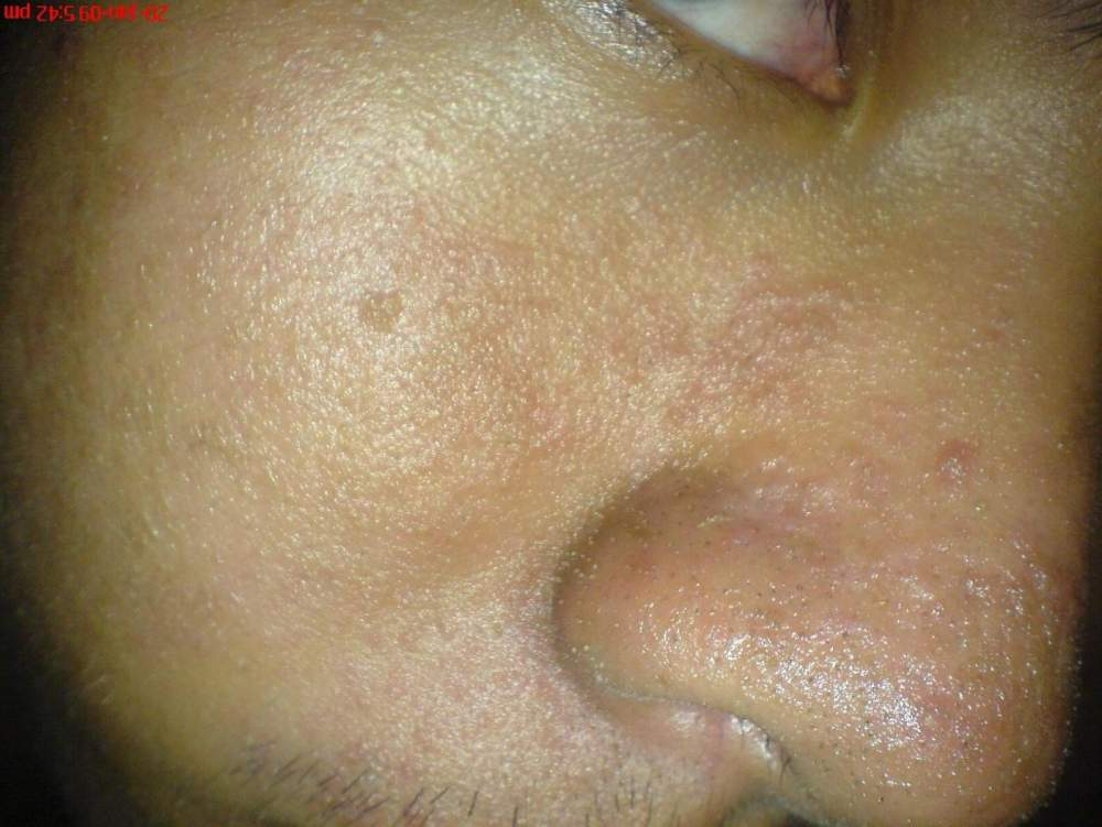 Day 11 All Natural Regimen(Right Nose)