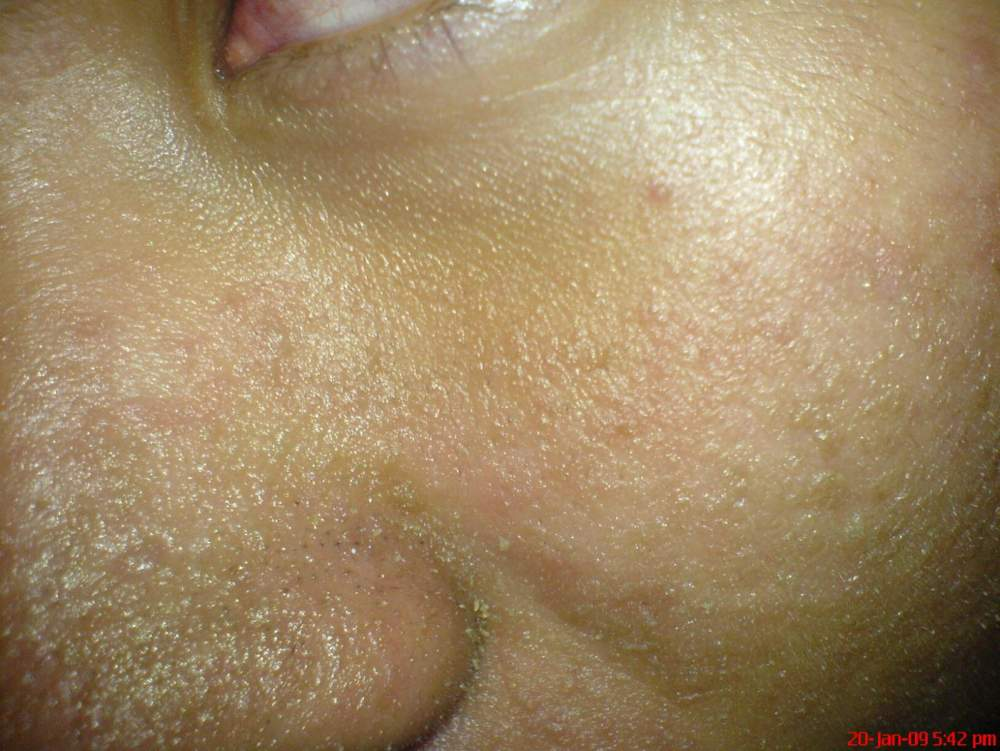 Day 11 All Natural Regimen(Left Nose)
