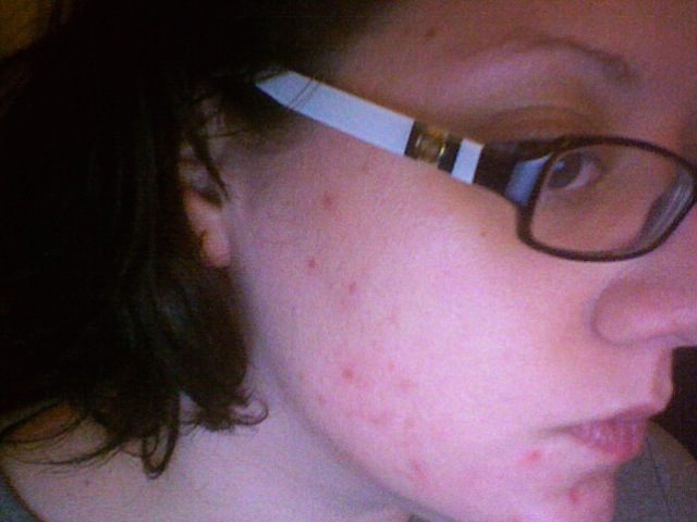 at least 10 new pimples today. IN ONE DAY?? come on..