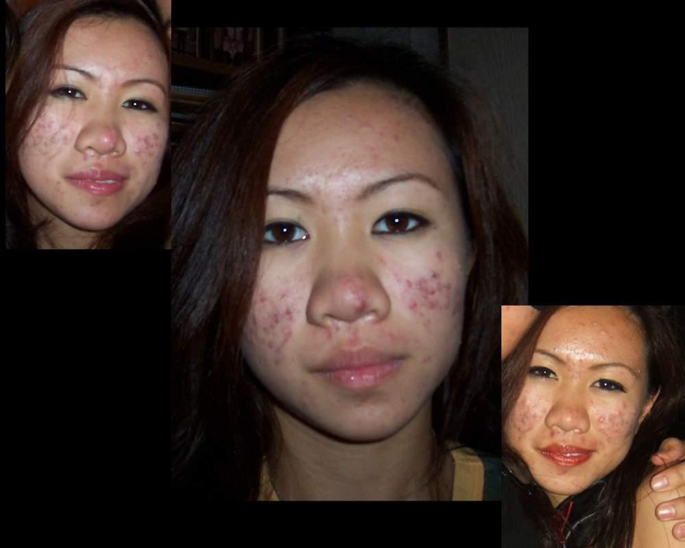 acne05.jpg