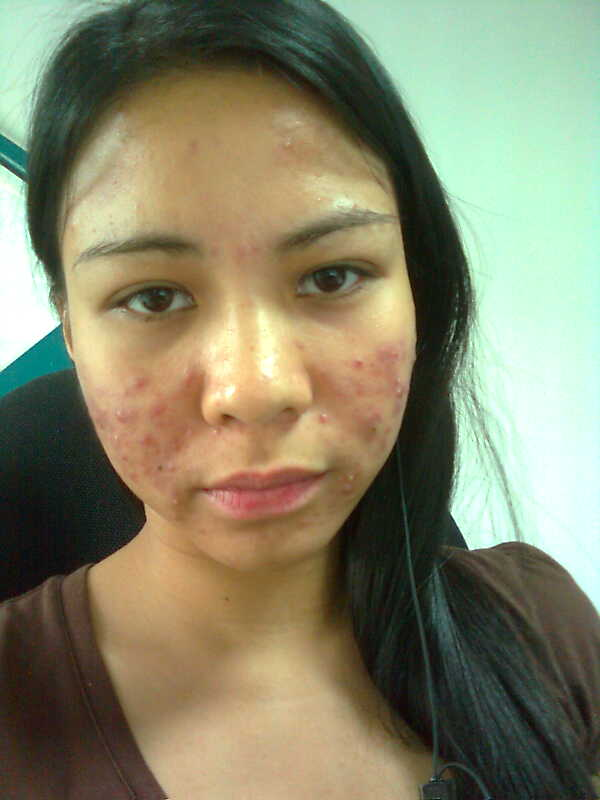 Day 1 Acne Laser Treatment