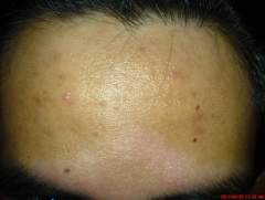 Day 28 All Natural Regimen - Forehead