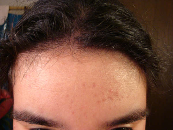 Forehead 02.08.09