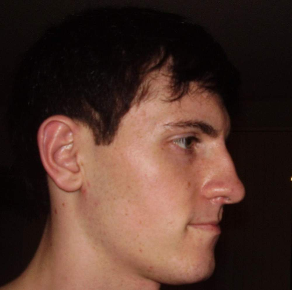 after week 1, right side of face