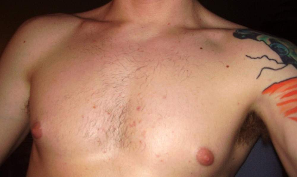 after week 1, chest