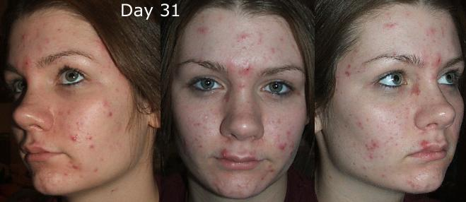 Does accutane make your skin purge