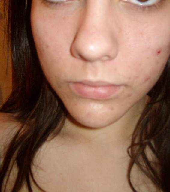 How to Look Nice with Freckles, Acne or Uneven Skin Tone