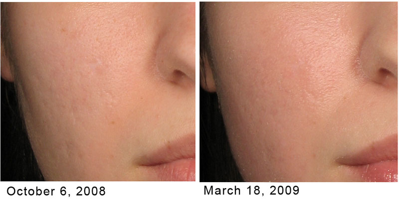 TotalFX Before and After