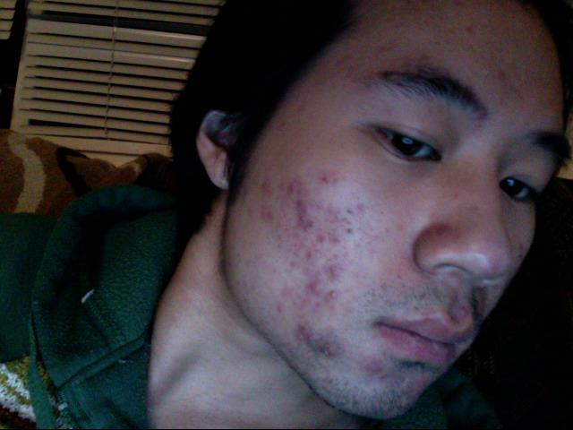 Starting Accutane Day 01