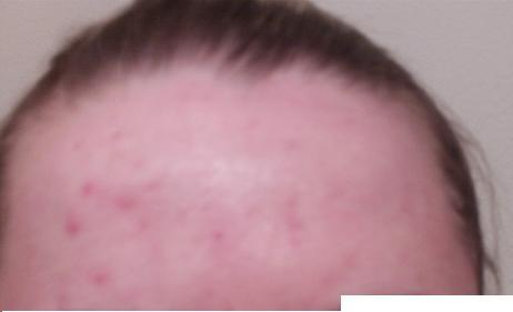 Forehead - day zero