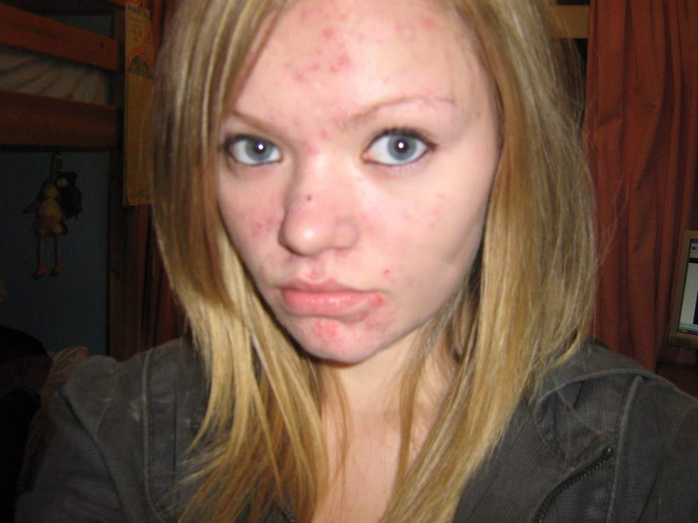 yucky yuck yucky ..before i got my huge cyst