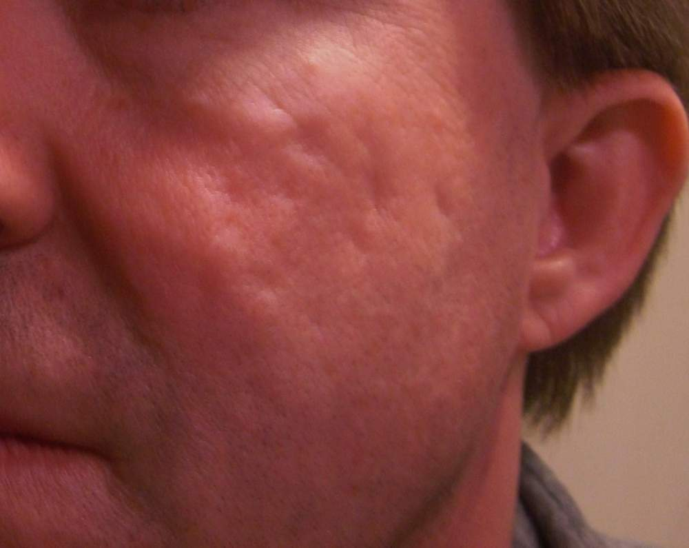 20090218 RS Facial Scars Photo #4.JPG