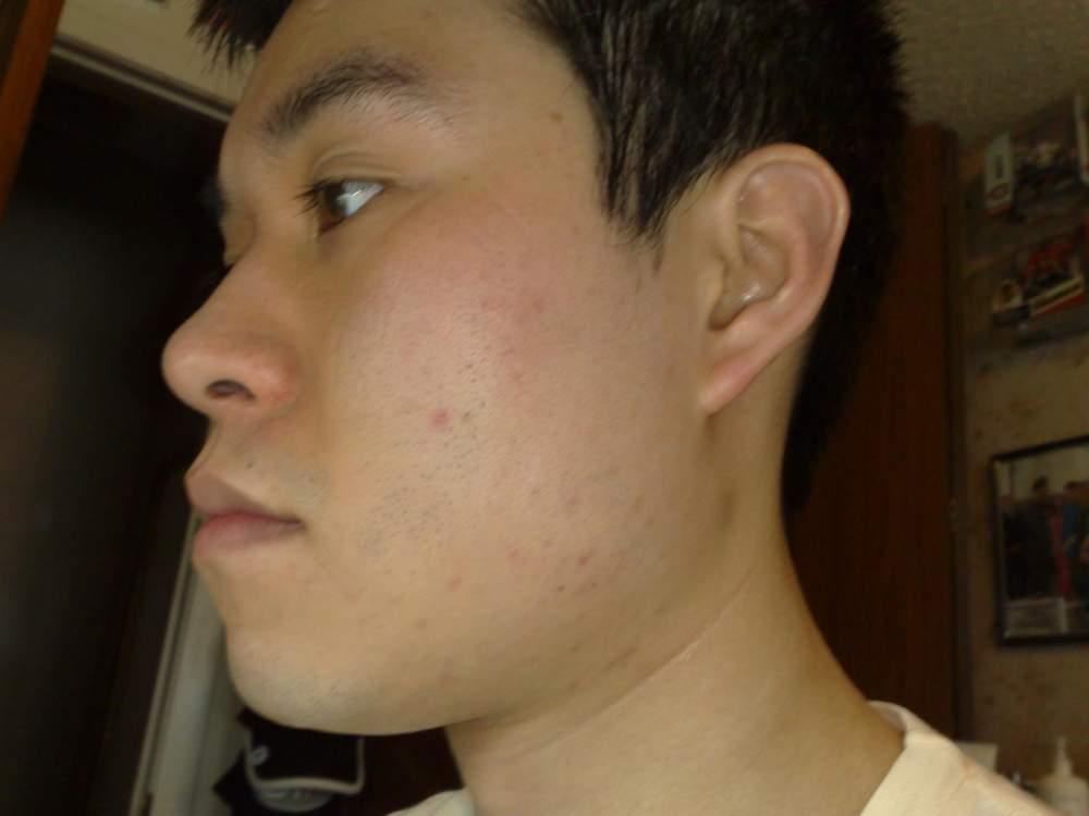 04/19/09: Left