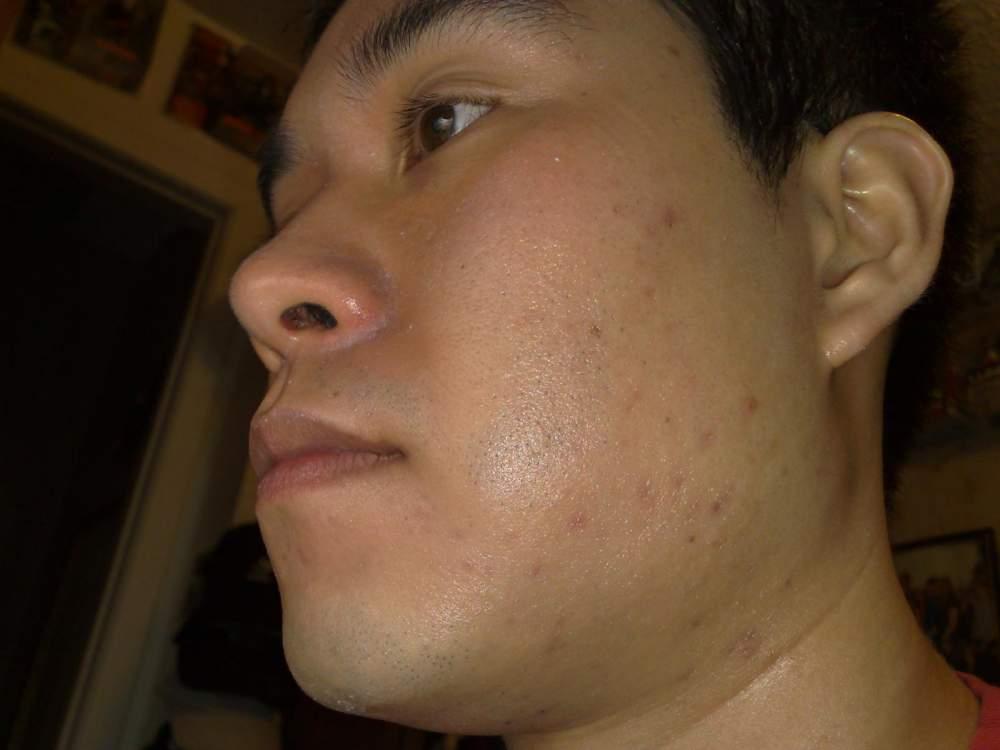 03/12/09: Left