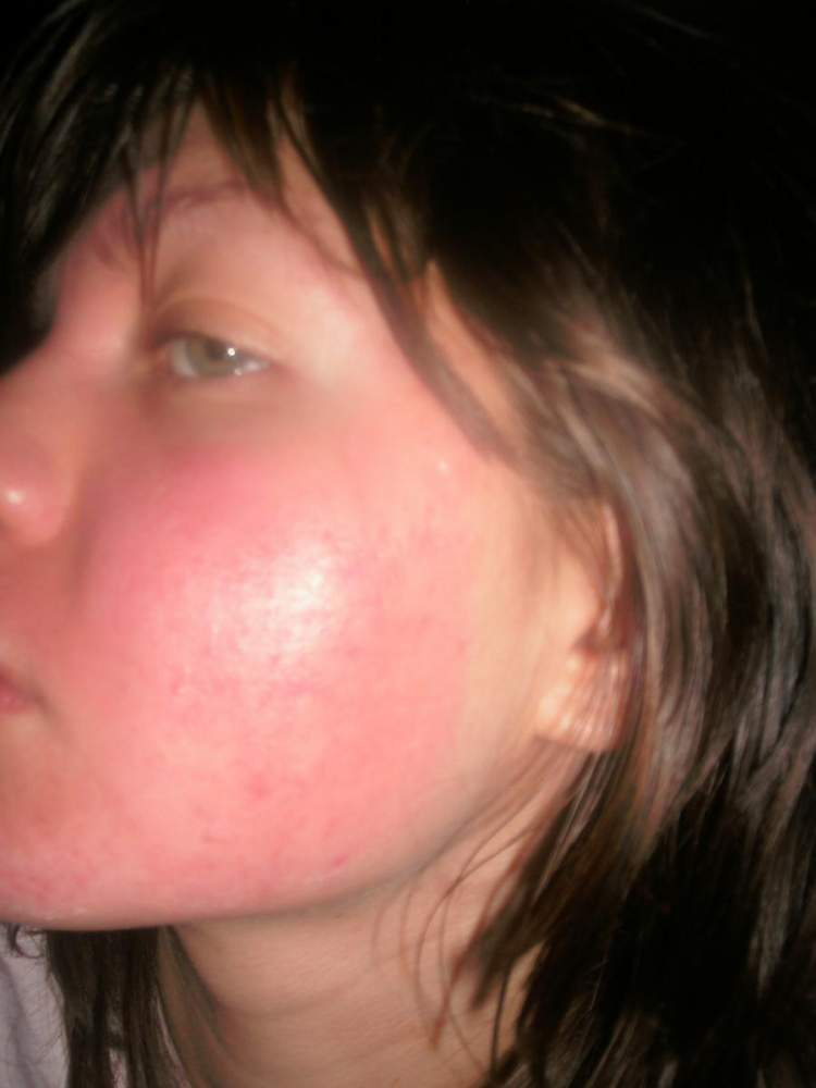 April 17, 2009 (less than a month since starting the regimen