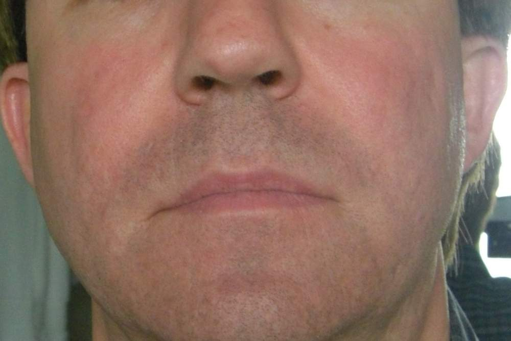 April 30, 2009 (Full Face Photo - 45 Days After Subcision)