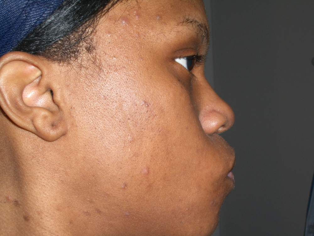 My Skin before Accutane...