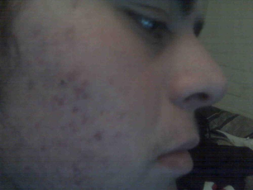 week on accutane side picture.jpg