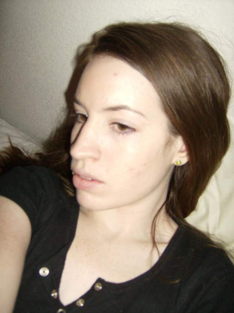 Me in 2007, before my acne got bad