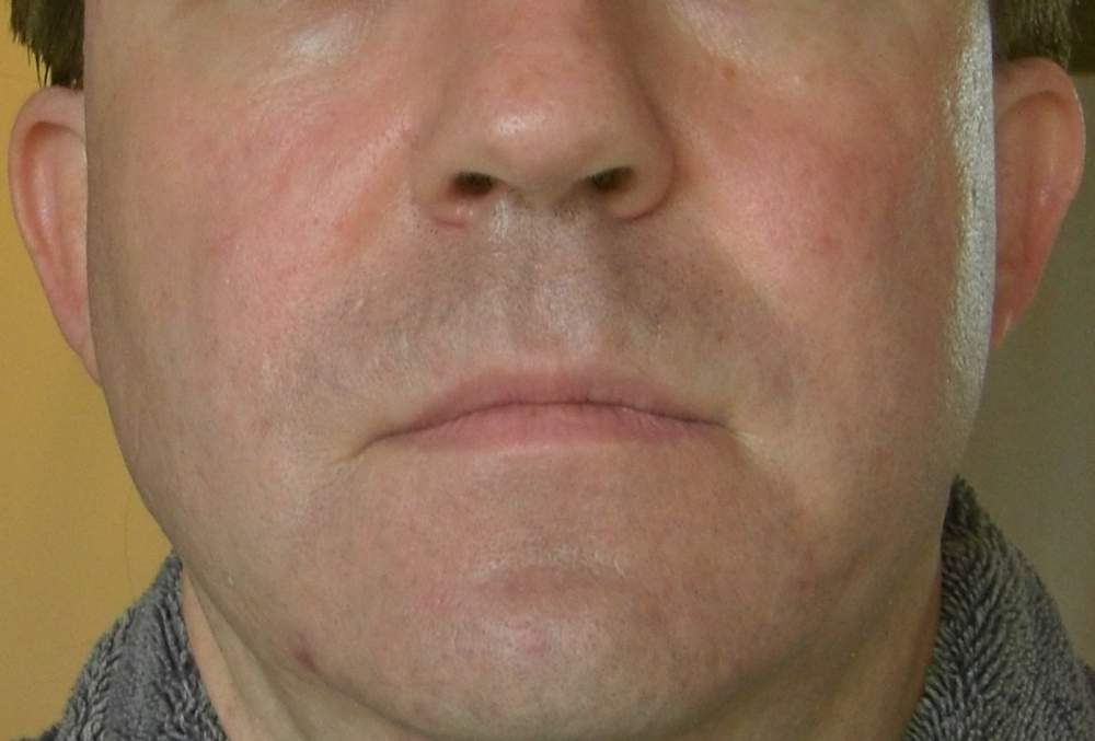 Before and After Photos - Subcision and TCA Cross Method